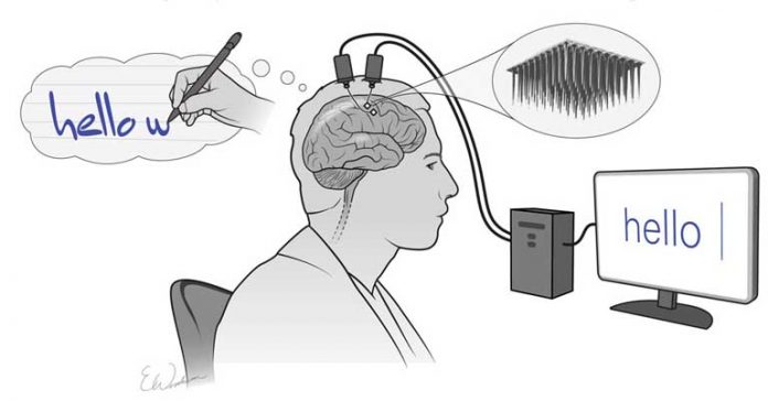 Typing with Neural Implants