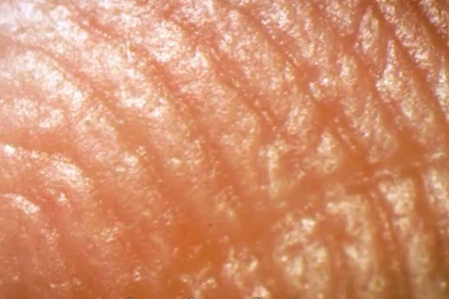 Sweat glands at fingertips